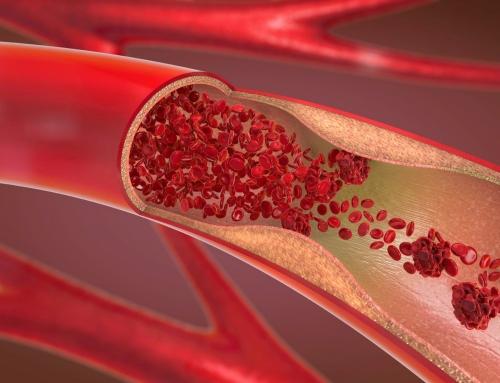 Šiandien minima Pasaulinė trombozės diena: atlik testą ir įvertink savo trombozės riziką